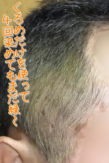 緑髪03.png